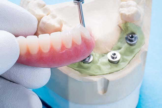 zirconia-crowns-dental-care-oral-health