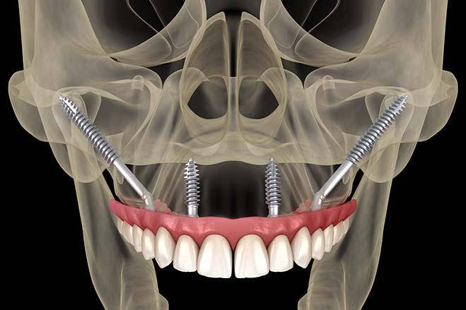 zygomatic-dental-implants-check-up-dental-care-oral-health